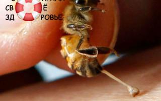 Лечение пчелиным ядом — секреты апитерапии